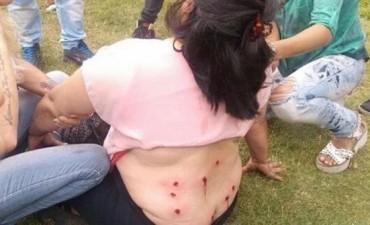 No soy ñoqui dijo la mujer herida en la protesta de la Plata