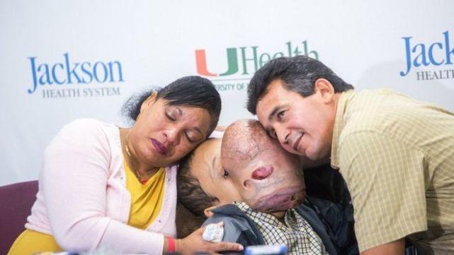 Le extirpan tumor facial de 4 kilos a pibe y muere