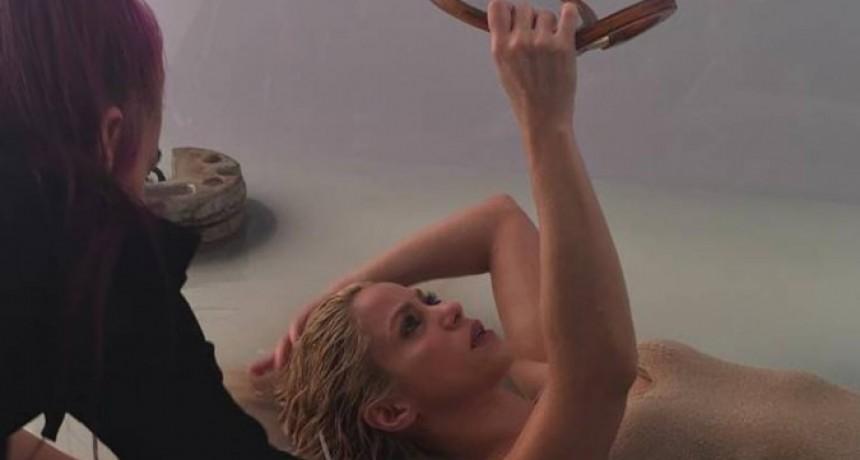 Shakira se está tratando para disimular su calvicie