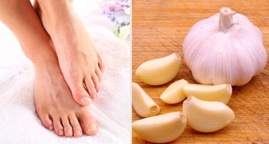 Cómo usar ajo machacado para aliviar una uña encarnada