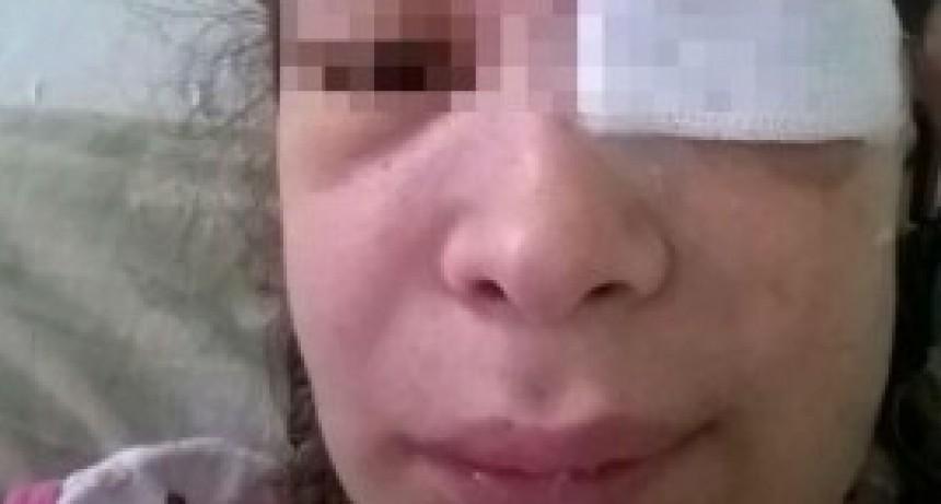 Amamantaba a su bebé y su novio le disparó en el ojo