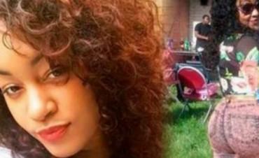 Estados Unidos: Una mujer se inyectó silicona y murió