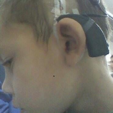 Maldad sin limites le robaron audífonos de 34 mil dólares a un niño hipoacúsico