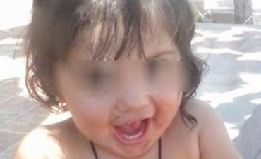 Falleció Tiziana, la bebé que había ingerido silicona en San Juan