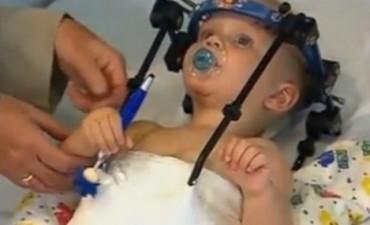 Logran restituir la cabeza de un bebé que sufrió decapitación
