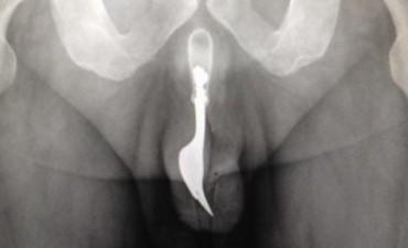 Hombre llegó al hospital con un tenedor dentro de su miembro