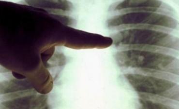 Crean tecnología 3D para diagnosticar enfermedades pulmonares