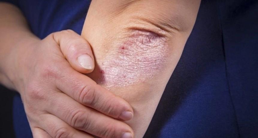 Campaña de detección de psoriasis gratuita y sin turno en hospitales