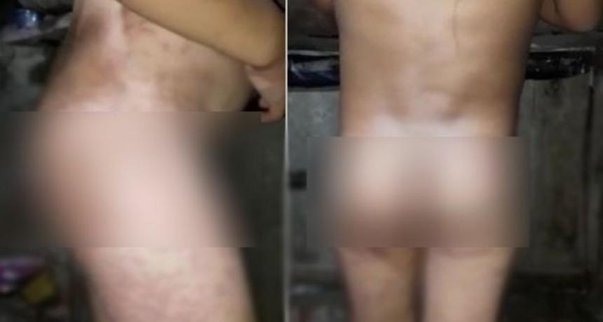 Mujer torturaba a sus hijos haciéndolos sentar desnudos sobre un hormiguero