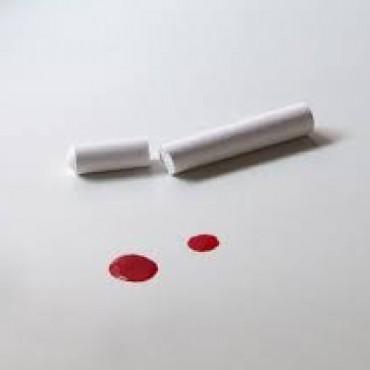 Alumno agredió a su profesor dándole un puntazo con una lapicera
