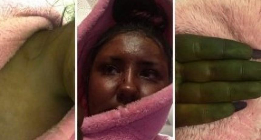 Se puso autobronceador y quedó verde como Fiona de Shrek