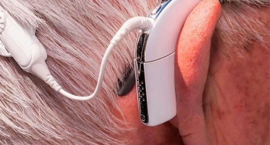 Revés para OSEP : La Corte falló y obliga a la obra social a cubrir un implante auditivo