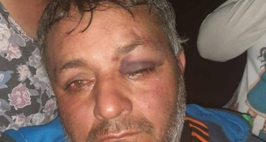 Denunció que fue brutalmente golpeado por policías dentro del patrullero