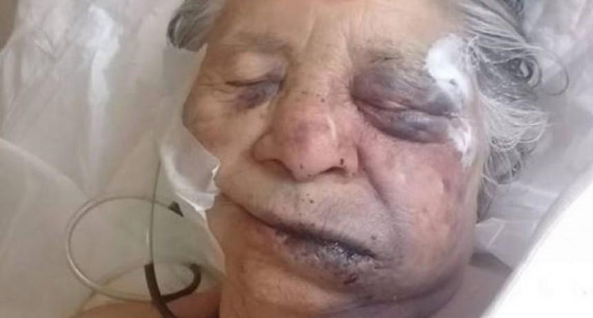 Dolor y horror en Santa Fe: falleció la anciana que fue torturada en un asalto