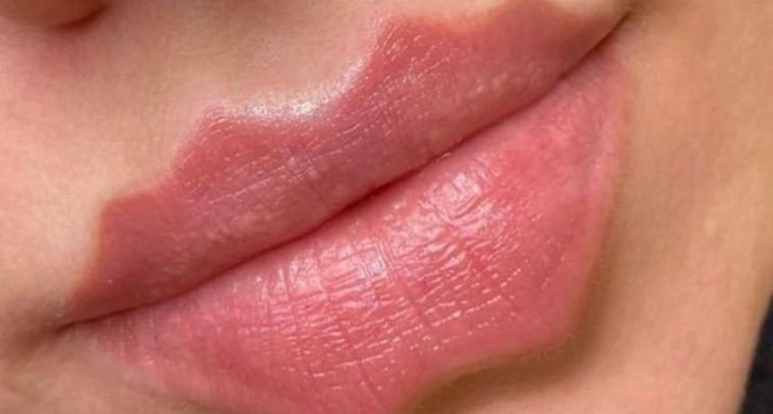 Peligrosa moda viral: los labios del diablo